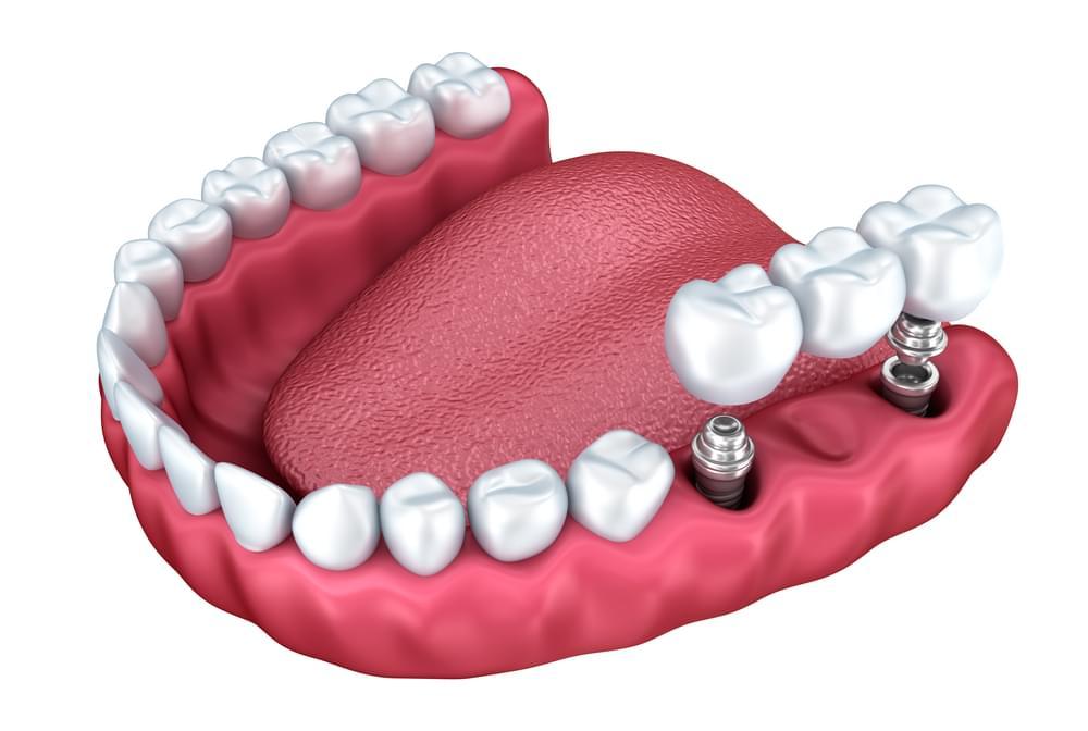 Dental Implants in Lees Summit